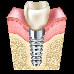 implant_icon